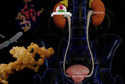 Urninary Health Webinar